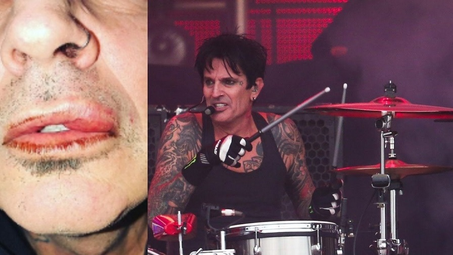 Tommy Lee assaulted by his own son