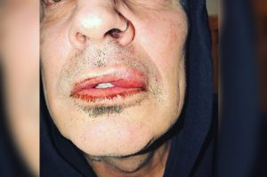 Tommy Lee assaulted by son