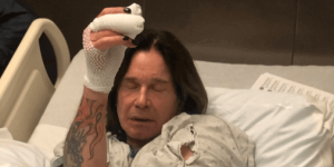 Ozzy Osbourne after hand surgery