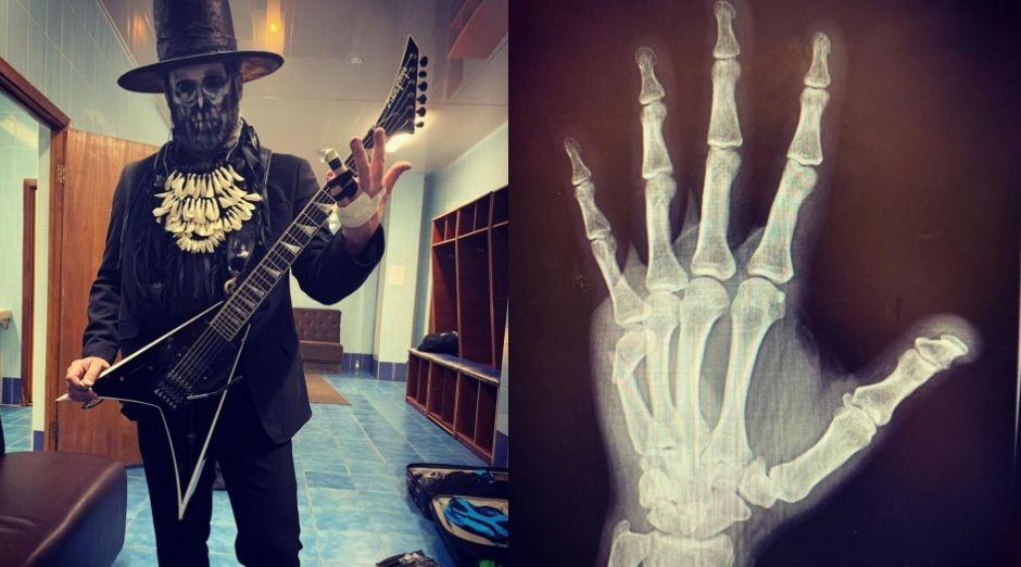 Limp Bizkit guitarist broken hand